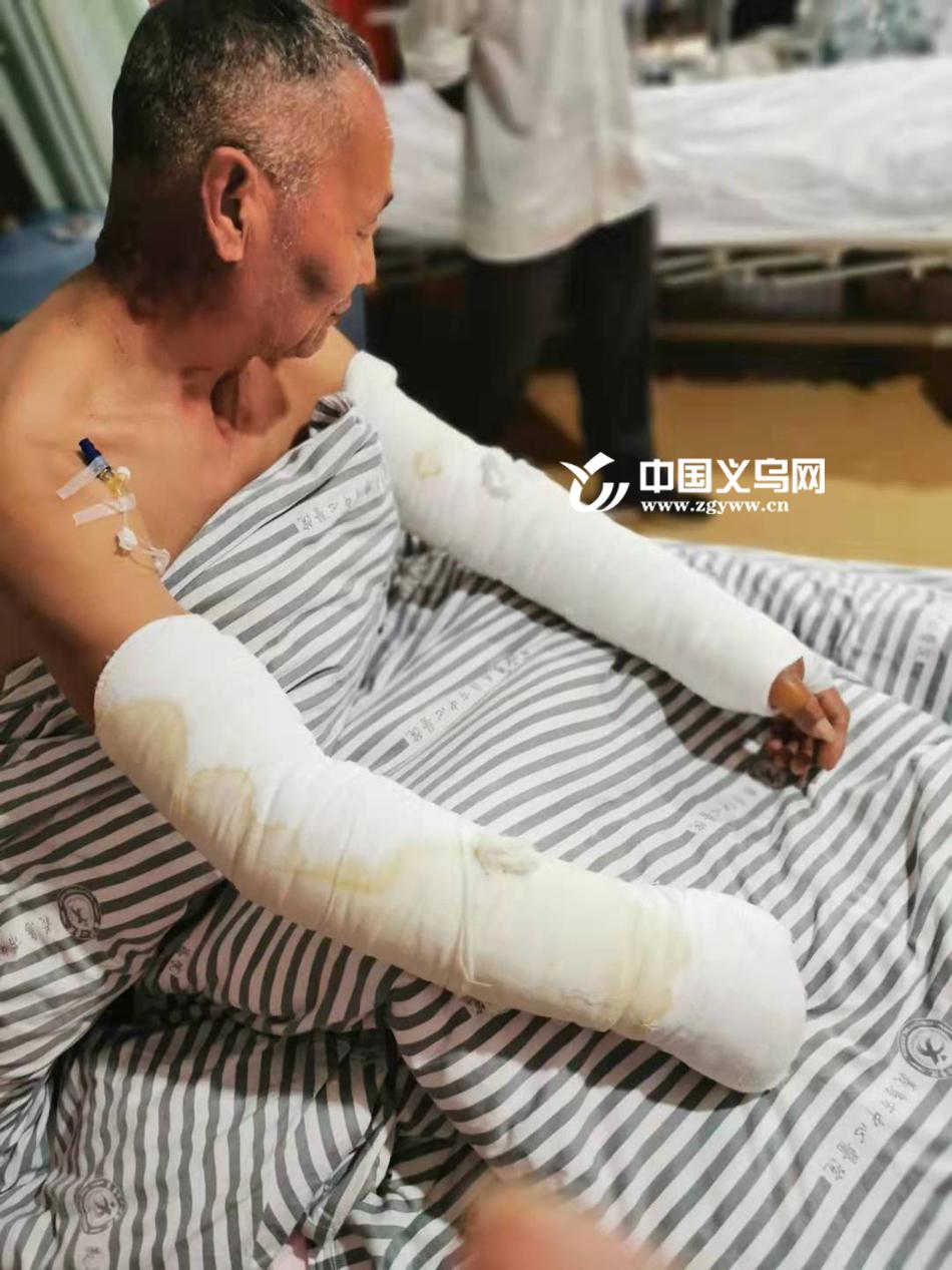 【十八力】既是党员又是退伍老兵 义乌68岁老人勇闯火场被烧伤